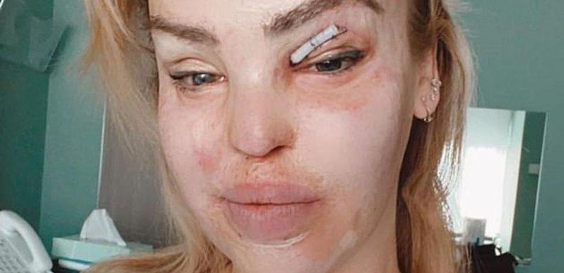 400. OP überstanden: Säure-Opfer Katie Piper gibt Update!